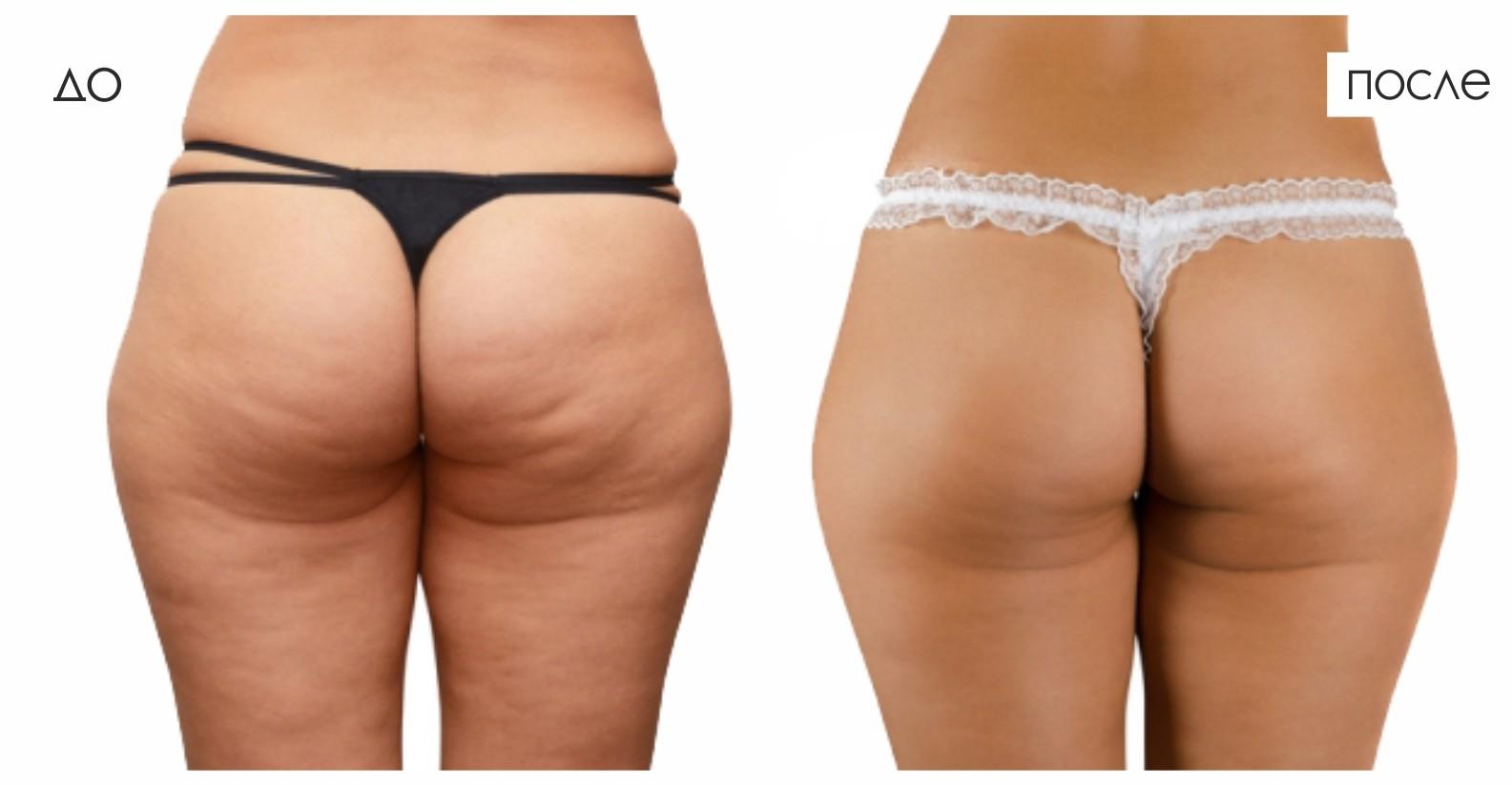 Фотографии большой жопы и огромное задницы толстые попы