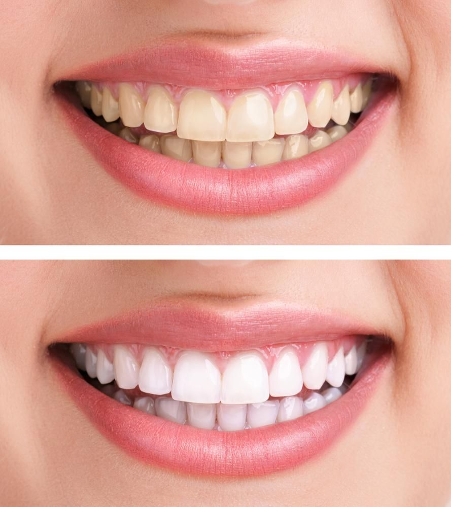 Отбеливание зубов в Тюмени