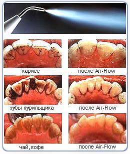 Удаление зубного камня в Тюмени