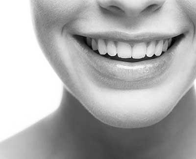 Имплантация зубов в Тюмени