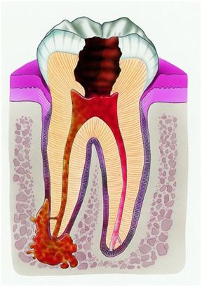 Периодонтит - это самое опасное осложнение кариозного процесса